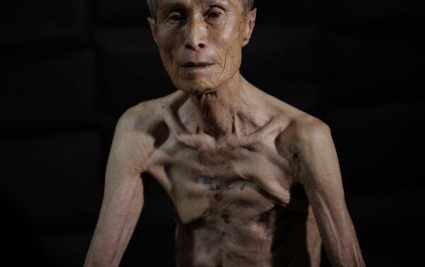 Sumiteru Taniguchi, superviviente del bombardeo atómico sobre Nagasaki ocurrido el 9 de agosto de 1945. Esta foto fue tomada el 30 de junio de 2015. - Sputnik Mundo