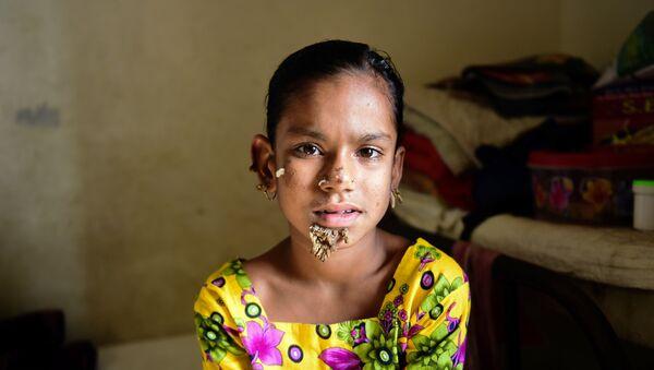 Sahana Khatun, la primera 'niña árbol' - Sputnik Mundo