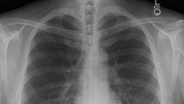 Radiografía de pulmón - Sputnik Mundo