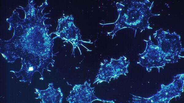Células de cáncer - Sputnik Mundo