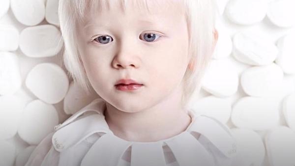Estos hermanos tienen algo peculiar: son albinos - Sputnik Mundo