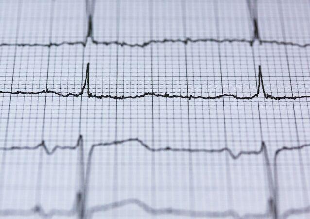 Un cardiograma (imagen referencial)