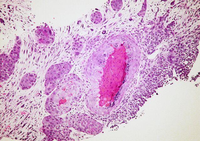 Células de cáncer (imagen referencial)