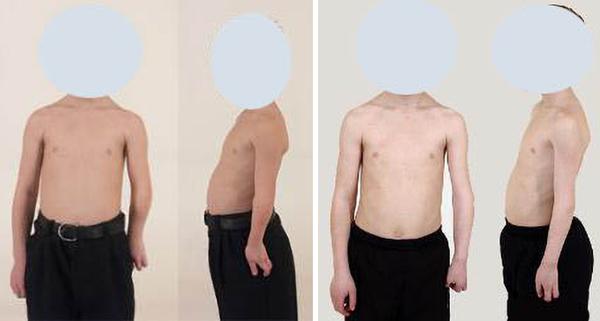Paciente de 16 años con displasia postraumática de codo. Alargamiento de ocho centímetros. - Sputnik Mundo