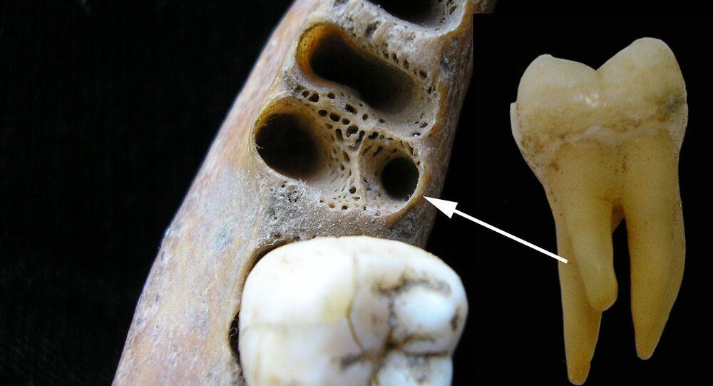 Molar inferior de tres raíces