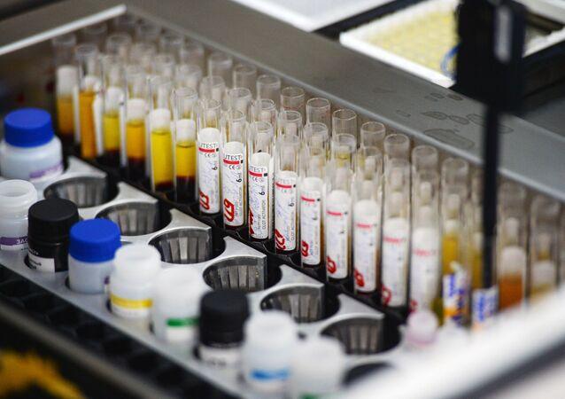 Las pruebas de hepatitis en un laboratorio