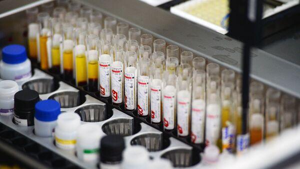 Las pruebas de hepatitis en un laboratorio - Sputnik Mundo