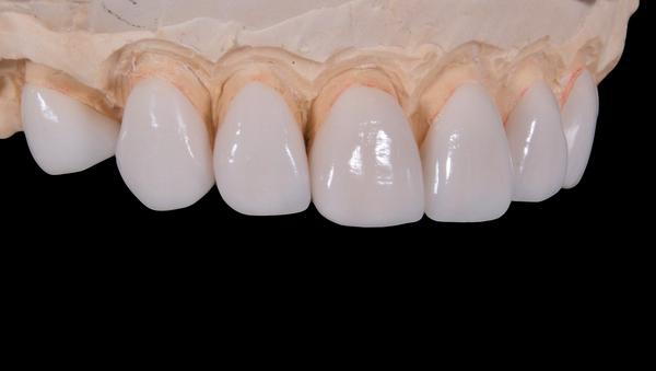 Los dientes de porcelana (imagen referencial) - Sputnik Mundo