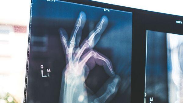 Radiografia de la mano (imagen referencial) - Sputnik Mundo
