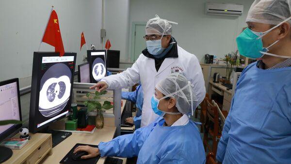 Médicos del hospital de Zhongnan en Wuhan observando la tomografía de un paciente  - Sputnik Mundo