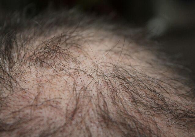 Calvo. Calvicie. Alopecia. Imagen referencial