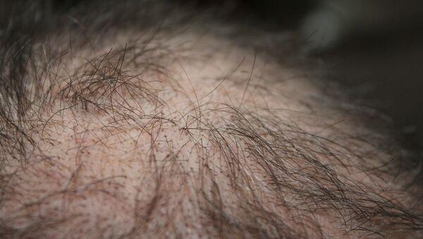 Calvo. Calvicie. Alopecia. Imagen referencial - Sputnik Mundo