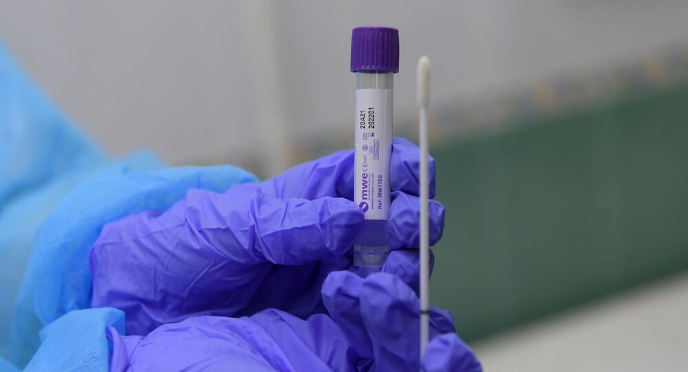Un test para diagnosticar el coronavirus