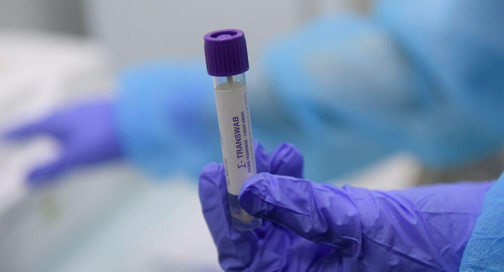 Test de coronavirus (imagen referencial)