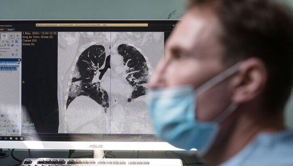 Imagen de pulmones con neumonia - Sputnik Mundo