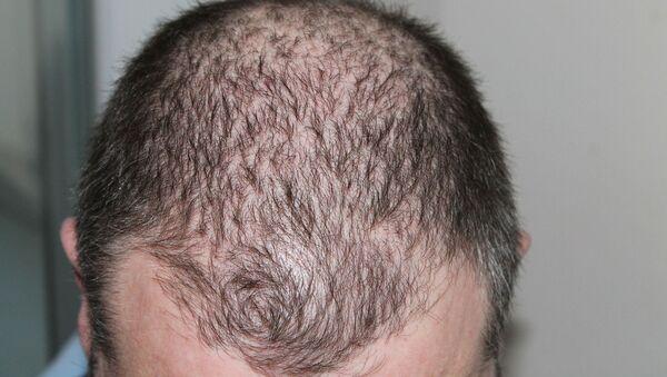 Hombre con alopecia - Sputnik Mundo