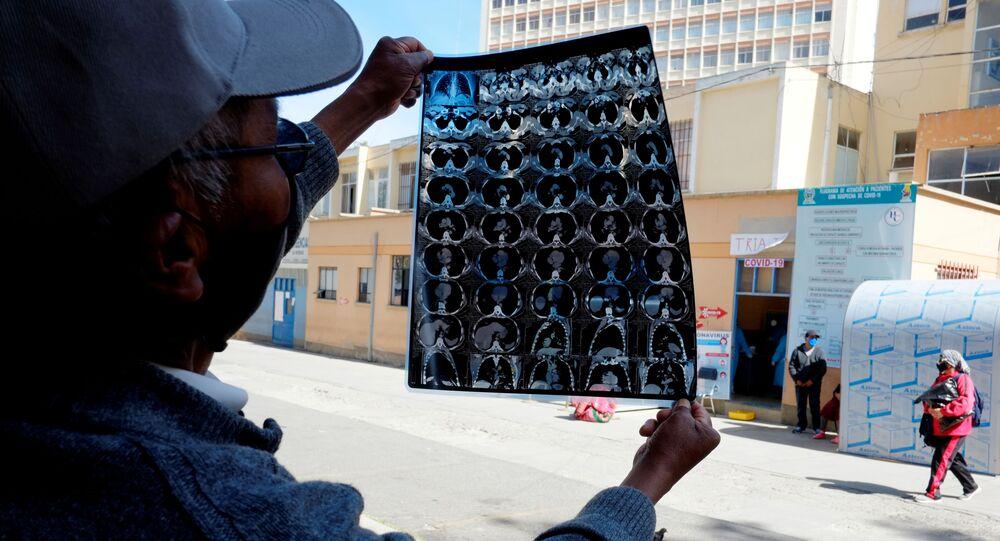 Un boliviano muestra la tomografía computarizada de los pulmones de su hijo